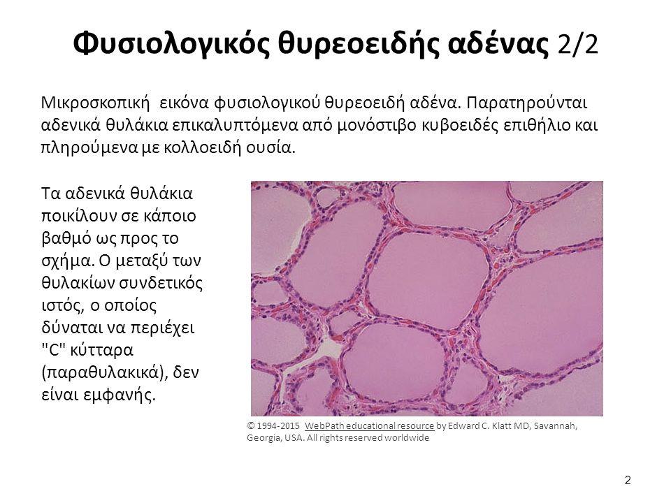 Φυσιολογικό θυρεοειδικό θυλάκιο Ιστολογική εικόνα φυσιολογικού θυρεοειδικού θυλακίου καλυπτομένου από κυβοειδές επιθήλιο τα κύτταρα του οποίου δύνανται να προσθέτουν ή να αφαιρούν κολλοειδές, ανάλογα με το βαθμό διέγερσης από την θυρεοειδοτρόπο ορμόνη της υπόφυσης (TSH=thyroid stimulating hormone).