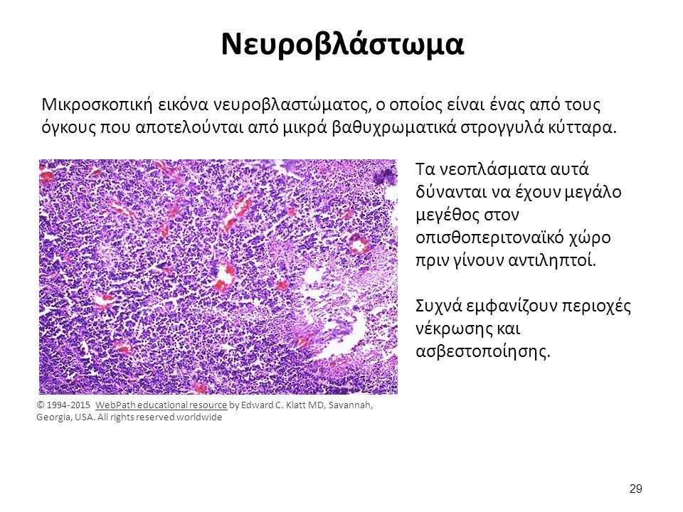 Νευροβλάστωμα Μικροσκοπική εικόνα νευροβλαστώματος, ο οποίος είναι ένας από τους όγκους που αποτελούνται από μικρά βαθυχρωματικά στρογγυλά κύτταρα. Τα
