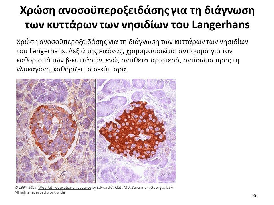 Χρώση ανοσοϋπεροξειδάσης για τη διάγνωση των κυττάρων των νησιδίων του Langerhans Χρώση ανοσοϋπεροξειδάσης για τη διάγνωση των κυττάρων των νησιδίων τ