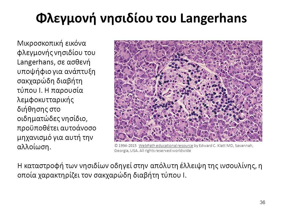 Φλεγμονή νησιδίου του Langerhans Μικροσκοπική εικόνα φλεγμονής νησιδίου του Langerhans, σε ασθενή υποψήφιο για ανάπτυξη σακχαρώδη διαβήτη τύπου Ι. Η π