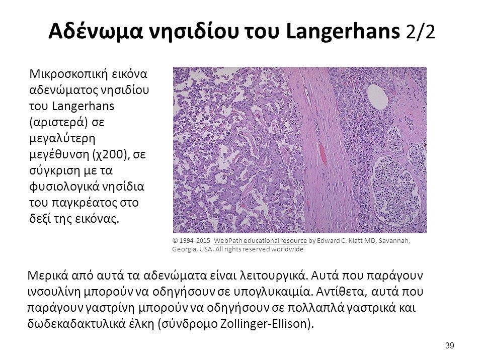 Αδένωμα νησιδίου του Langerhans 2/2 Μικροσκοπική εικόνα αδενώματος νησιδίου του Langerhans (αριστερά) σε μεγαλύτερη μεγέθυνση (χ200), σε σύγκριση με τ