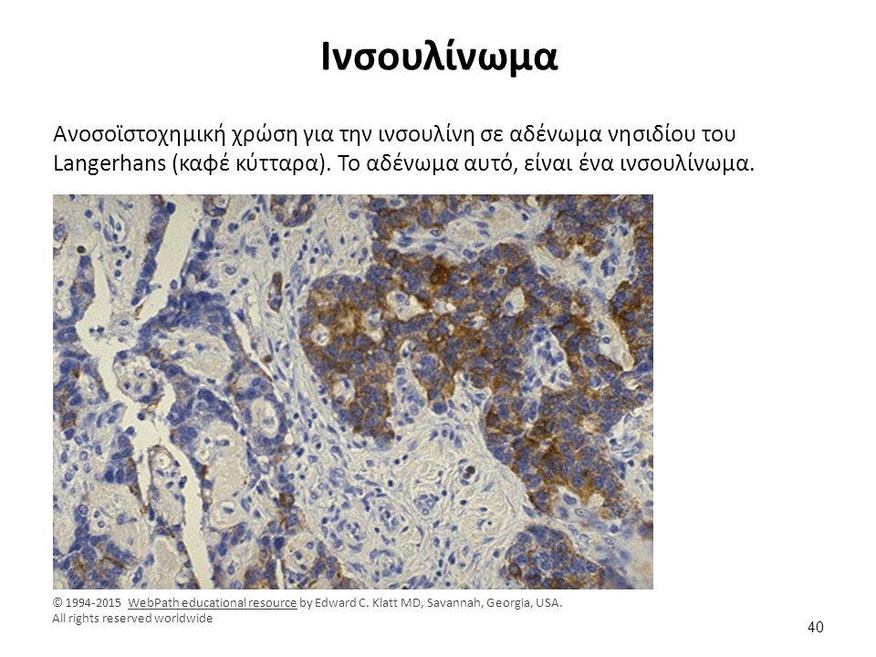 Ινσουλίνωμα Ανοσοϊστοχημική χρώση για την ινσουλίνη σε αδένωμα νησιδίου του Langerhans (καφέ κύτταρα). Το αδένωμα αυτό, είναι ένα ινσουλίνωμα. © 1994-