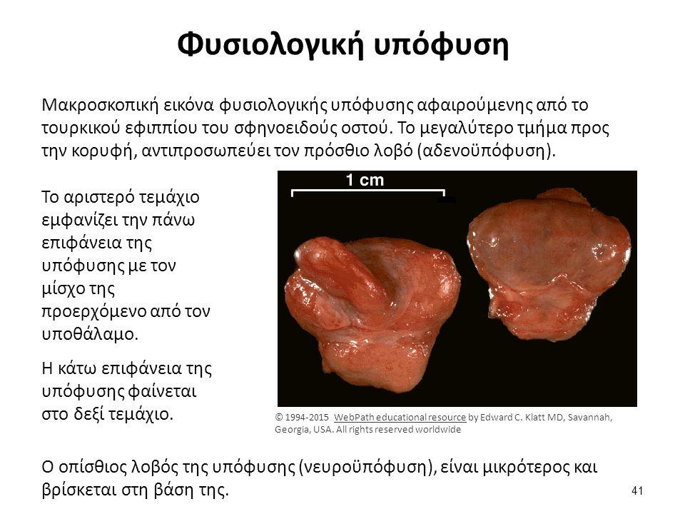 Φυσιολογική υπόφυση Μακροσκοπική εικόνα φυσιολογικής υπόφυσης αφαιρούμενης από το τουρκικού εφιππίου του σφηνοειδούς οστού. Το μεγαλύτερο τμήμα προς τ
