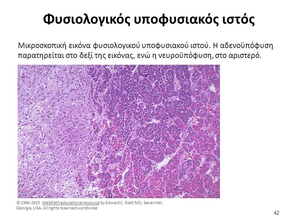 Φυσιολογικός υποφυσιακός ιστός Μικροσκοπική εικόνα φυσιολογικού υποφυσιακού ιστού. Η αδενοϋπόφυση παρατηρείται στο δεξί της εικόνας, ενώ η νευροϋπόφυσ