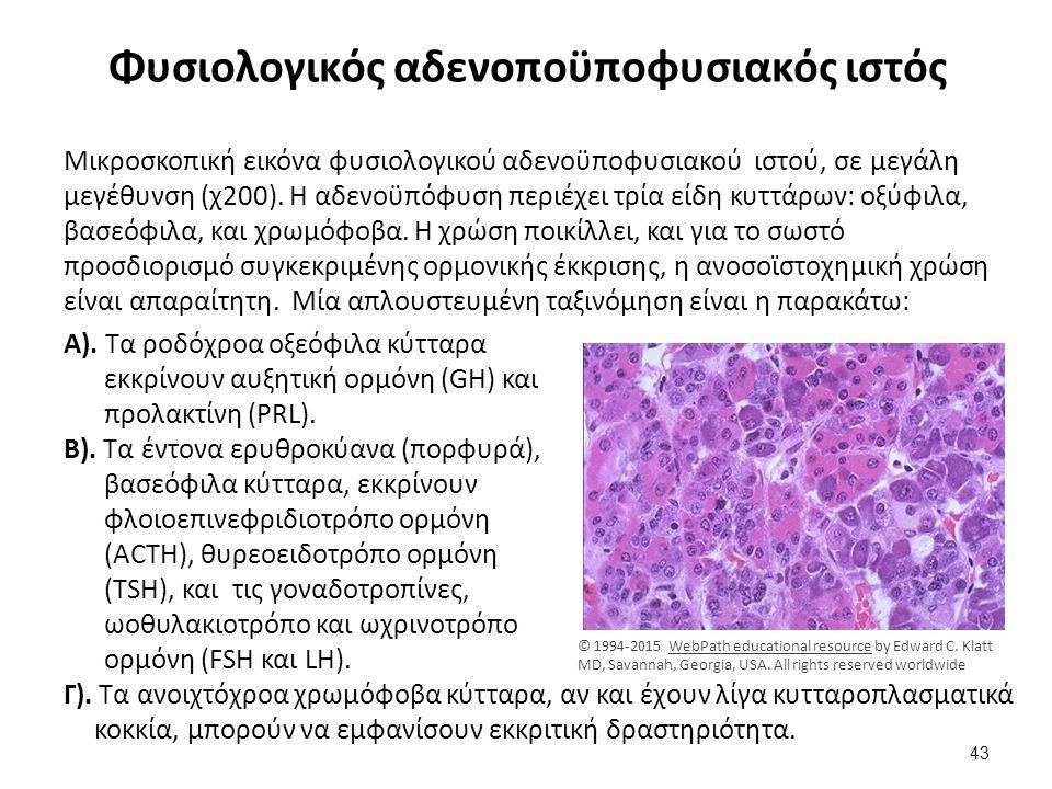 Φυσιολογικός αδενοποϋποφυσιακός ιστός Μικροσκοπική εικόνα φυσιολογικού αδενοϋποφυσιακού ιστού, σε μεγάλη μεγέθυνση (χ200). Η αδενοϋπόφυση περιέχει τρί