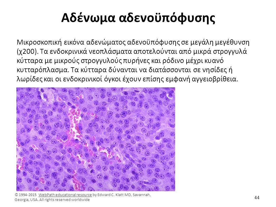 Αδένωμα αδενοϋπόφυσης Μικροσκοπική εικόνα αδενώματος αδενοϋπόφυσης σε μεγάλη μεγέθυνση (χ200). Τα ενδοκρινικά νεοπλάσματα αποτελούνται από μικρά στρογ