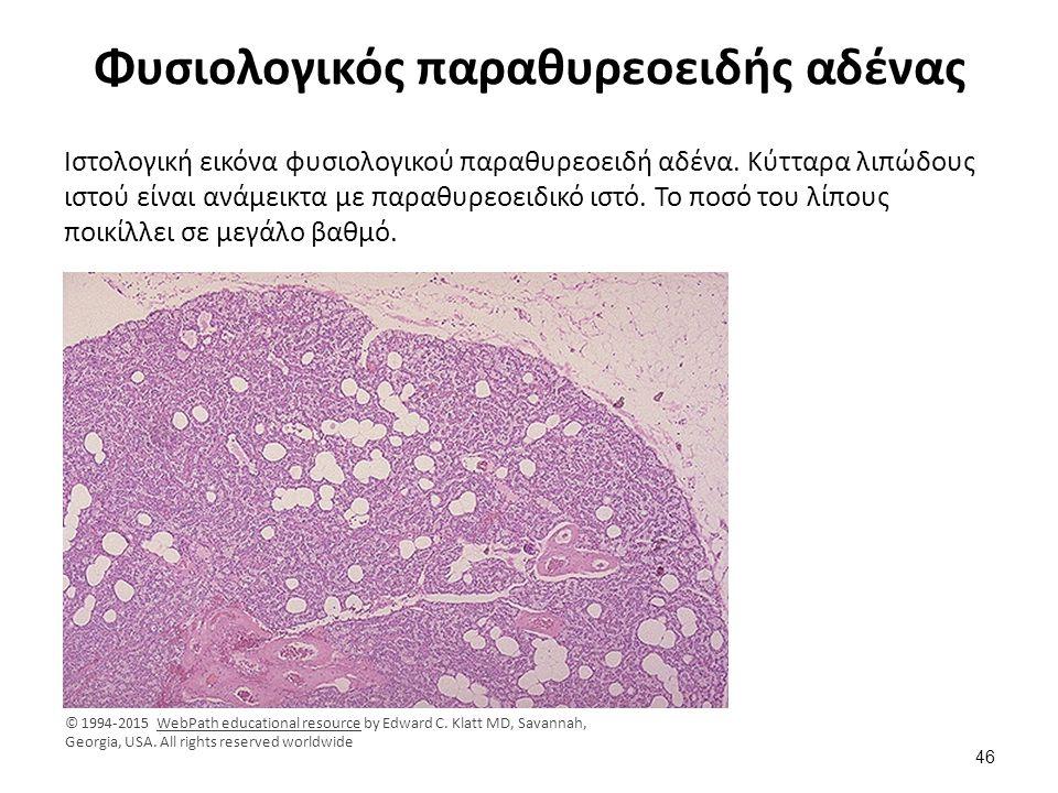 Φυσιολογικός παραθυρεοειδής αδένας Ιστολογική εικόνα φυσιολογικού παραθυρεοειδή αδένα. Κύτταρα λιπώδους ιστού είναι ανάμεικτα με παραθυρεοειδικό ιστό.