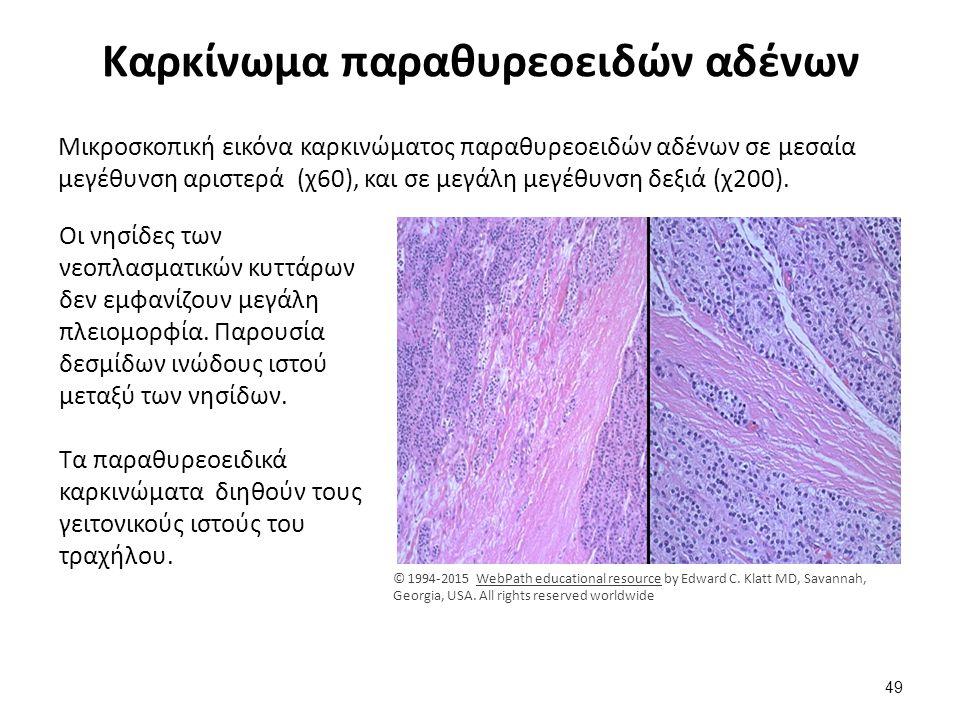 Καρκίνωμα παραθυρεοειδών αδένων Μικροσκοπική εικόνα καρκινώματος παραθυρεοειδών αδένων σε μεσαία μεγέθυνση αριστερά (χ60), και σε μεγάλη μεγέθυνση δεξ