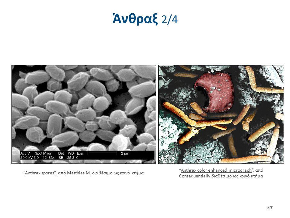Άνθραξ 2/4 47 Anthrax spores , από Matthias M.διαθέσιμο ως κοινό κτήμαAnthrax sporesMatthias M.