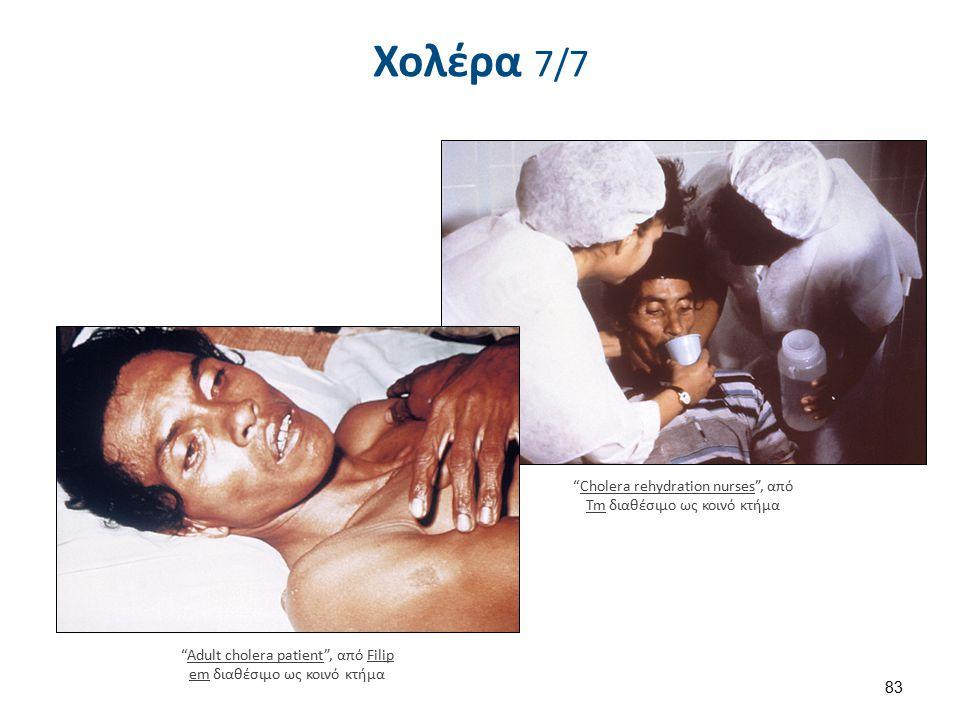 Χολέρα 7/7 83 Cholera rehydration nurses , από Tm διαθέσιμο ως κοινό κτήμαCholera rehydration nurses Tm Adult cholera patient , από Filip em διαθέσιμο ως κοινό κτήμαAdult cholera patientFilip em