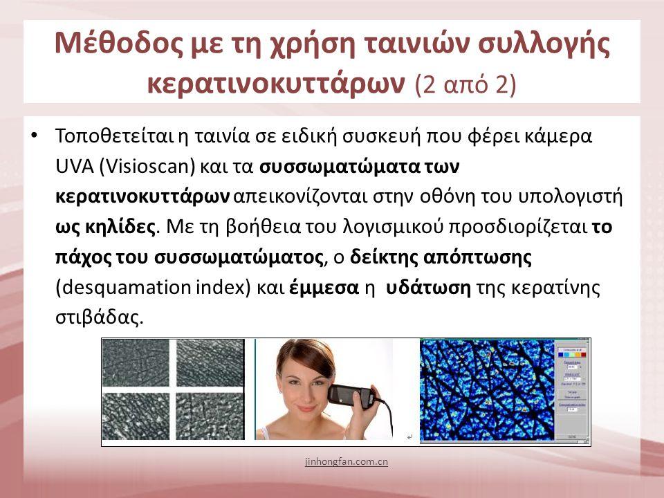 Τοποθετείται η ταινία σε ειδική συσκευή που φέρει κάμερα UVA (Visioscan) και τα συσσωματώματα των κερατινοκυττάρων απεικονίζονται στην οθόνη του υπολο