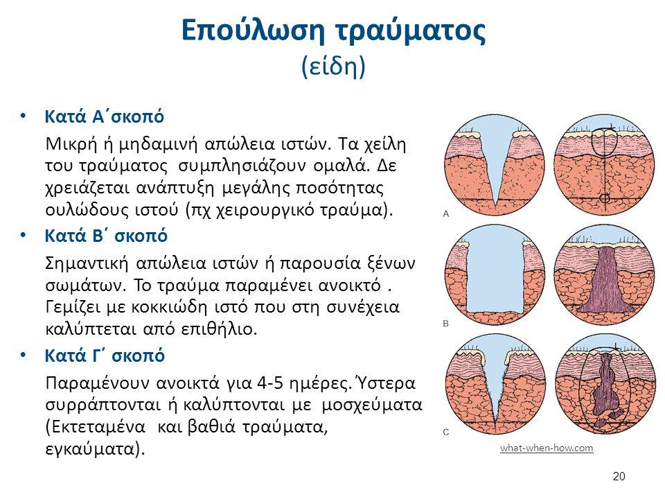 Επούλωση τραύματος (είδη) Κατά Α΄σκοπό Μικρή ή μηδαμινή απώλεια ιστών. Τα χείλη του τραύματος συμπλησιάζουν ομαλά. Δε χρειάζεται ανάπτυξη μεγάλης ποσό