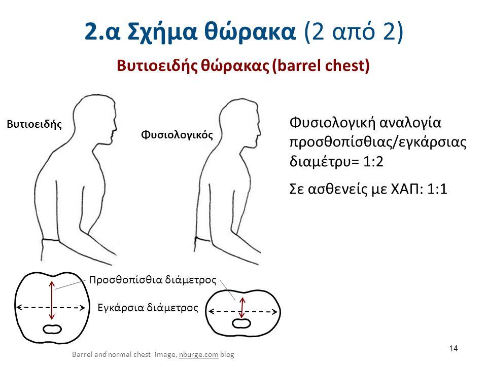 2.α Σχήμα θώρακα (2 από 2) 14 Barrel and normal chest image, nburge.com blognburge.com Βυτιοειδής θώρακας (barrel chest) Φυσιολογική αναλογία προσθοπί