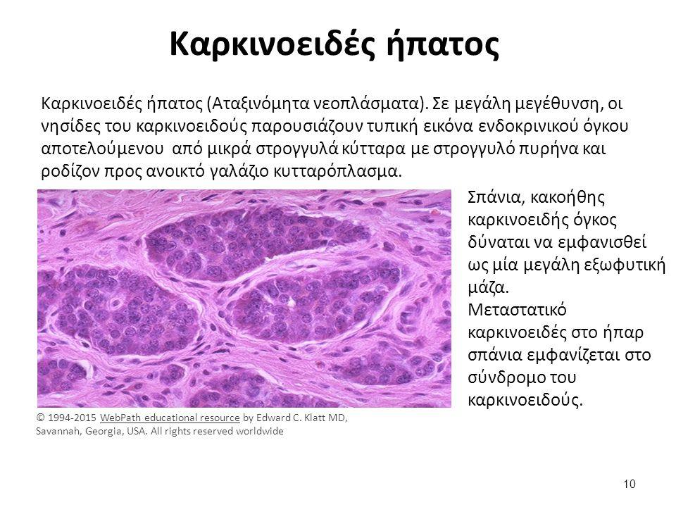 Καρκινοειδές ήπατος Καρκινοειδές ήπατος (Αταξινόμητα νεοπλάσματα). Σε μεγάλη μεγέθυνση, οι νησίδες του καρκινοειδούς παρουσιάζουν τυπική εικόνα ενδοκρ