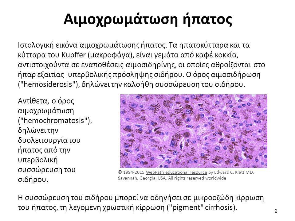 Αιμοχρωμάτωση ήπατος Ιστολογική εικόνα αιμοχρωμάτωσης ήπατος. Τα ηπατοκύτταρα και τα κύτταρα του Kupffer (μακροφάγα), είναι γεμάτα από καφέ κοκκία, αν