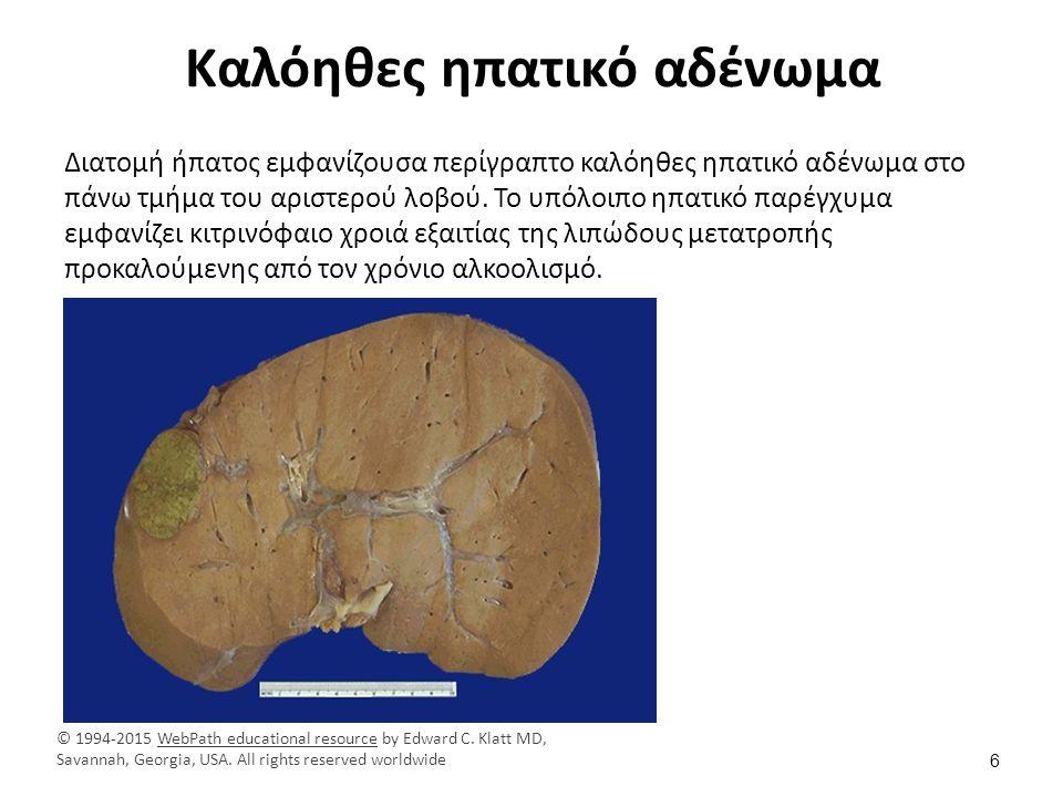 Ηπατικό αδένωμα Ιστολογική εικόνα ηπατικού αδενώματος.