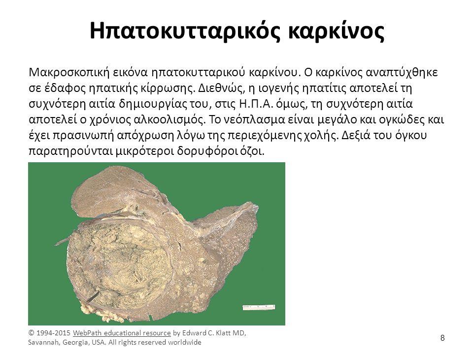 Ηπατοκυτταρικός καρκίνος Μακροσκοπική εικόνα ηπατοκυτταρικού καρκίνου. Ο καρκίνος αναπτύχθηκε σε έδαφος ηπατικής κίρρωσης. Διεθνώς, η ιογενής ηπατίτις