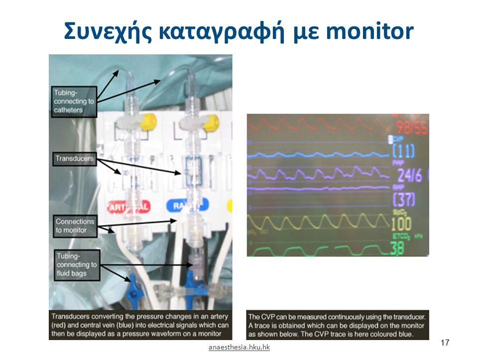 Συνεχής καταγραφή με monitor 17 anaesthesia.hku.hk