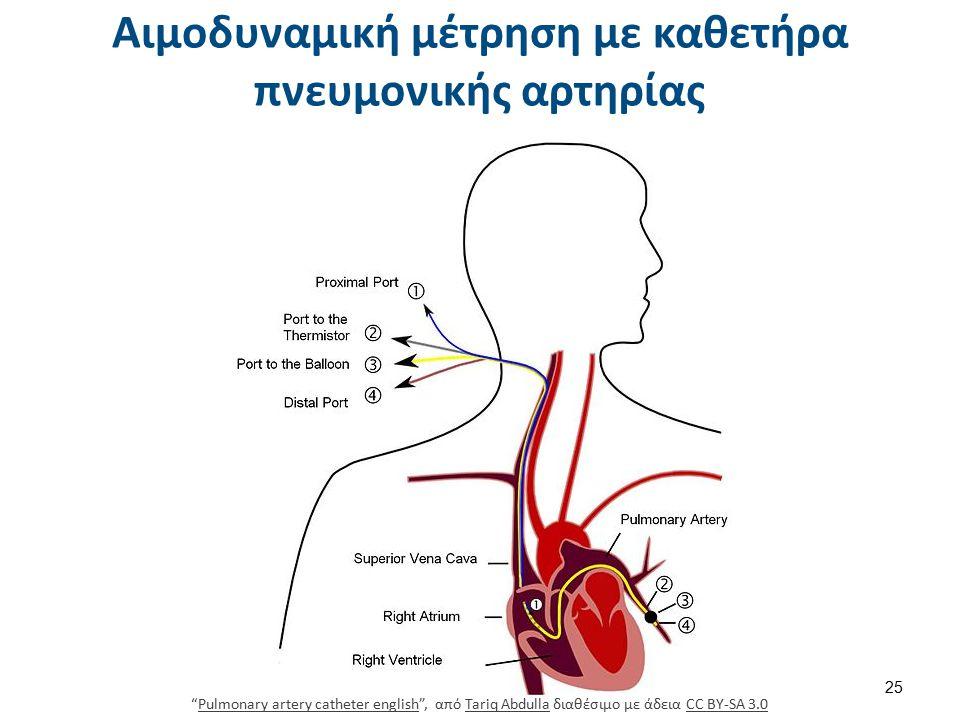Αιμοδυναμική μέτρηση με καθετήρα πνευμονικής αρτηρίας 25 Pulmonary artery catheter english , από Tariq Abdulla διαθέσιμο με άδεια CC BY-SA 3.0Pulmonary artery catheter englishTariq AbdullaCC BY-SA 3.0