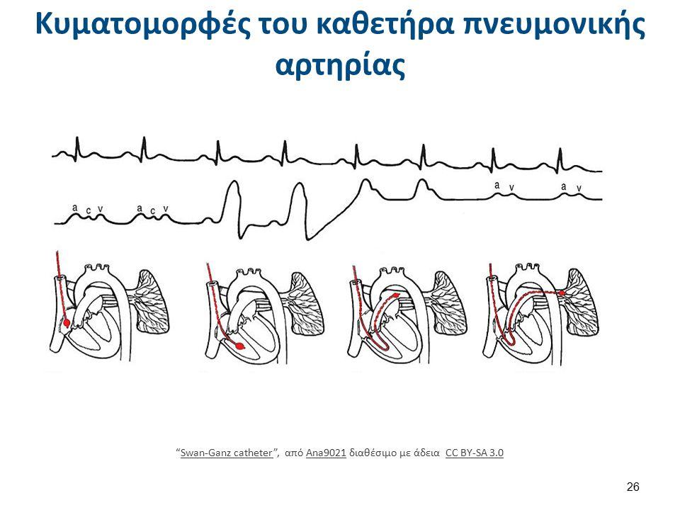 Κυματομορφές του καθετήρα πνευμονικής αρτηρίας 26 Swan-Ganz catheter , από Ana9021 διαθέσιμο με άδεια CC BY-SA 3.0Swan-Ganz catheterAna9021CC BY-SA 3.0
