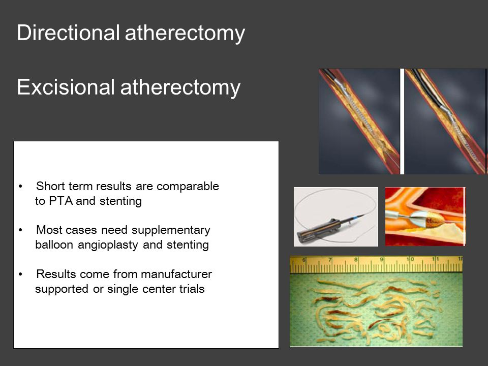 Directional atherectomy Excisional atherectomy Short term results are comparable to PTA and stenting Most cases need supplementary balloon angioplasty and stenting Results come from manufacturer supported or single center trials