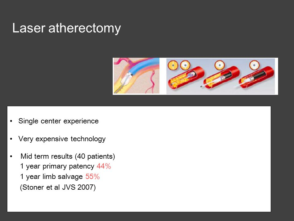 Laser atherectomy Single center experience Very expensive technology Mid term results (40 patients) 1 year primary patency 44% 1 year limb salvage 55% (Stoner et al JVS 2007)
