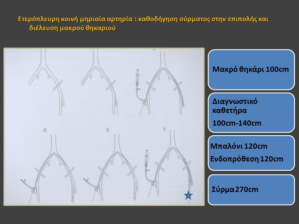 Ετερόπλευρη κοινή μηριαία αρτηρία : καθοδήγηση σύρματος στην επιπολής και διέλευση μακρού θηκαριού Μακρό θηκάρι 100cm Διαγνωστικό καθετήρα 100cm-140cm Μπαλόνι 120cm Ενδοπρόθεση 120cm Σύρμα 270cm