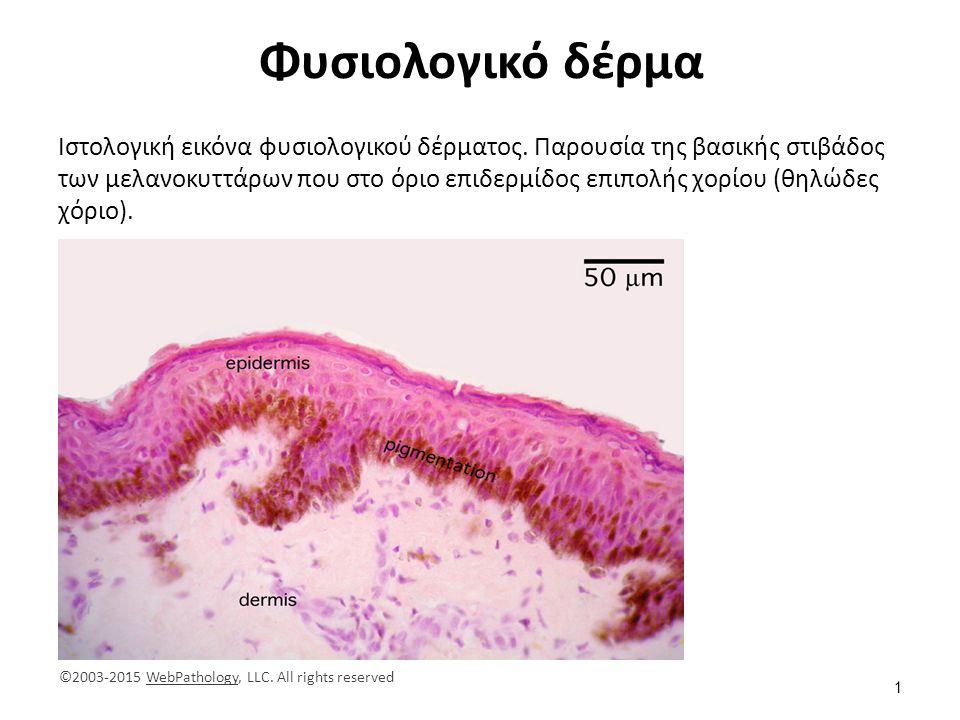 Φυσιολογικό δέρμα Ιστολογική εικόνα φυσιολογικού δέρματος. Παρουσία της βασικής στιβάδος των μελανοκυττάρων που στο όριο επιδερμίδος επιπολής χορίου (