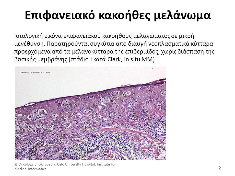 Οζώδες κακοήθες μελάνωμα Ιστολογική εικόνα οζώδους κακοήθους μελανώματος με χρώση αιματοξυλίνης-ηωσίνης (ΗΕ).