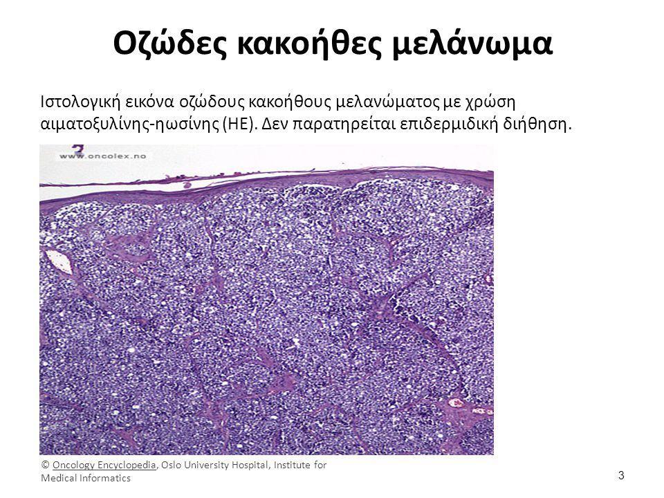 Οζώδες κακοήθες μελάνωμα Ιστολογική εικόνα οζώδους κακοήθους μελανώματος με χρώση αιματοξυλίνης-ηωσίνης (ΗΕ). Δεν παρατηρείται επιδερμιδική διήθηση. 3