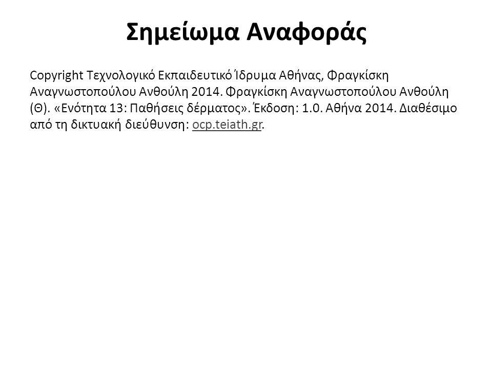 Σημείωμα Αναφοράς Copyright Τεχνολογικό Εκπαιδευτικό Ίδρυμα Αθήνας, Φραγκίσκη Αναγνωστοπούλου Ανθούλη 2014. Φραγκίσκη Αναγνωστοπούλου Ανθούλη (Θ). «Εν