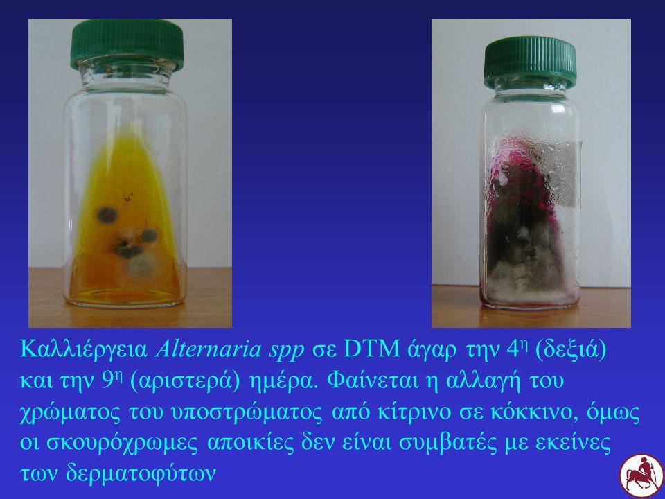Καλλιέργεια Alternaria spp σε DTM άγαρ την 4 η (δεξιά) και την 9 η (αριστερά) ημέρα. Φαίνεται η αλλαγή του χρώματος του υποστρώματος από κίτρινο σε κό