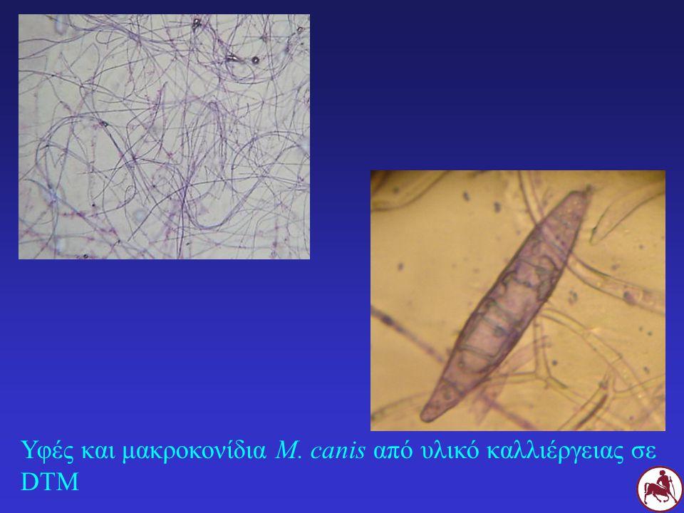 Υφές και μακροκονίδια M. canis από υλικό καλλιέργειας σε DTM