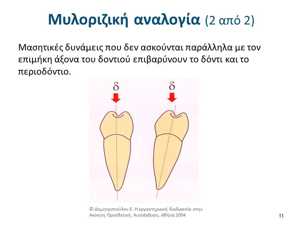Μυλοριζική αναλογία (2 από 2) Μασητικές δυνάμεις που δεν ασκούνται παράλληλα με τον επιμήκη άξονα του δοντιού επιβαρύνουν το δόντι και το περιοδόντιο.