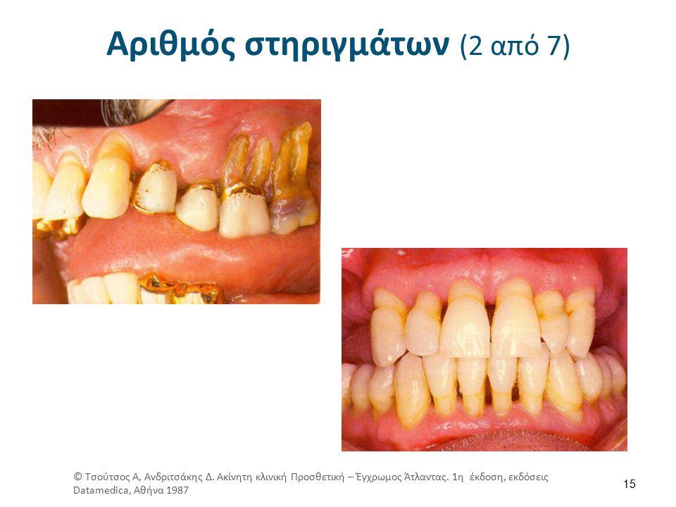 Αριθμός στηριγμάτων (2 από 7) 15 © Τσούτσος Α, Ανδριτσάκης Δ.