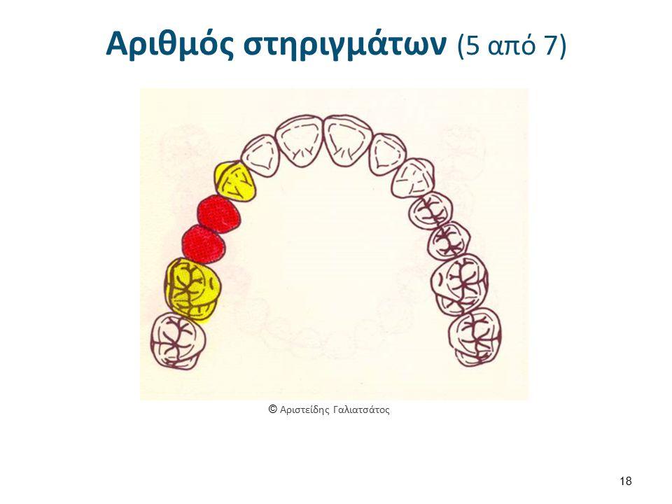 Αριθμός στηριγμάτων (5 από 7) 18 © Αριστείδης Γαλιατσάτος
