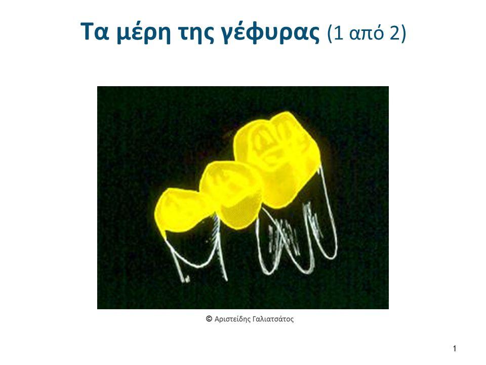 Συγκράτημα (2 από 7) Το είδος του συγκρατήματος εξαρτάται από: Τη θέση της γέφυρας στο φραγμό (άνω ή κάτω γνάθος), Τη πρόσθια ή οπίσθια θέση της στο οδοντικό τόξο, Την έκταση της νωδής περιοχής, Τον αριθμό και την κατάσταση των δοντιών στηριγμάτων, Τον μεσοφραγματικό χώρο, Τις συγκλεισιακές σχέσεις.