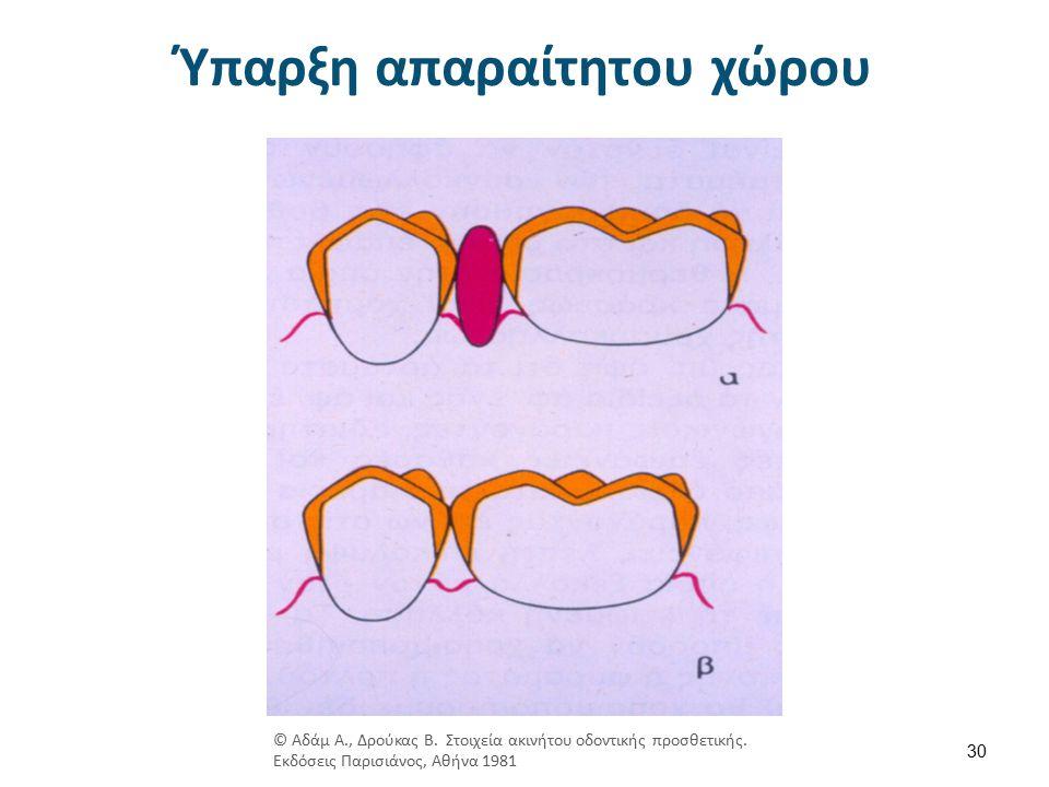 Ύπαρξη απαραίτητου χώρου 30 © Αδάμ Α., Δρούκας Β.Στοιχεία ακινήτου οδοντικής προσθετικής.