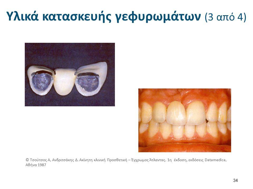 Υλικά κατασκευής γεφυρωμάτων (3 από 4) 34 © Τσούτσος Α, Ανδριτσάκης Δ.