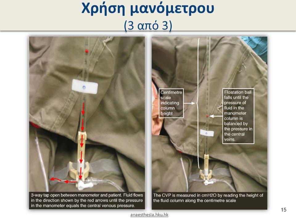 Χρήση μανόμετρου (3 από 3) anaesthesia.hku.hk 15