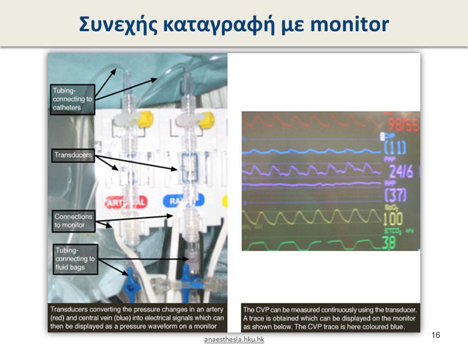 Συνεχής καταγραφή με monitor anaesthesia.hku.hk 16
