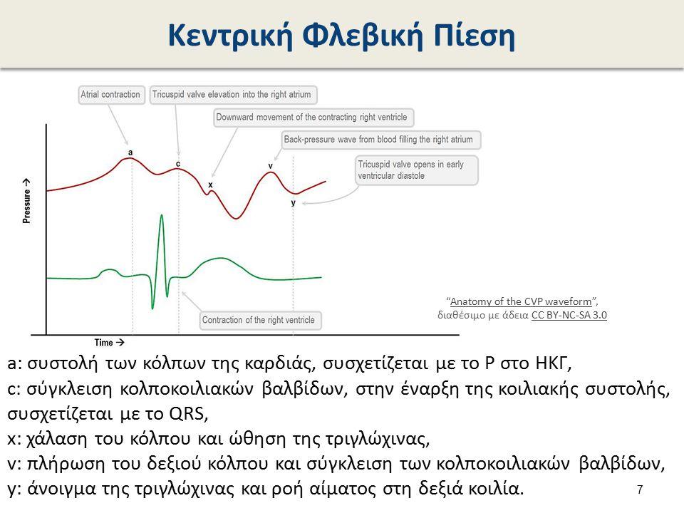"""Κεντρική Φλεβική Πίεση """"Anatomy of the CVP waveform"""", διαθέσιμο με άδεια CC BY-NC-SA 3.0Anatomy of the CVP waveformCC BY-NC-SA 3.0 a: συστολή των κόλπ"""