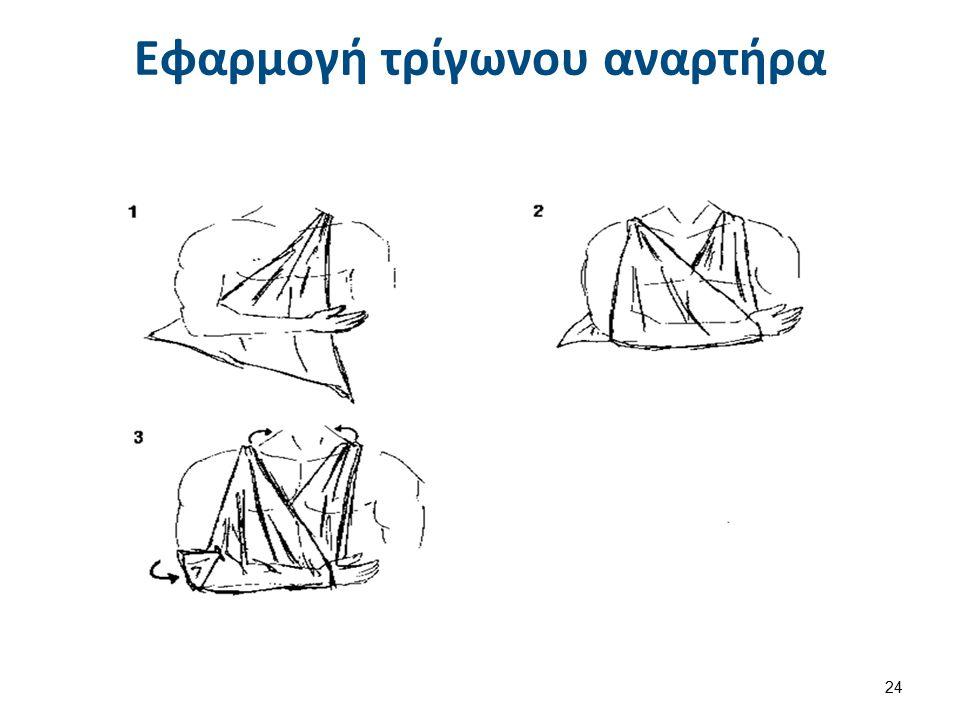 Εφαρμογή τρίγωνου αναρτήρα 24
