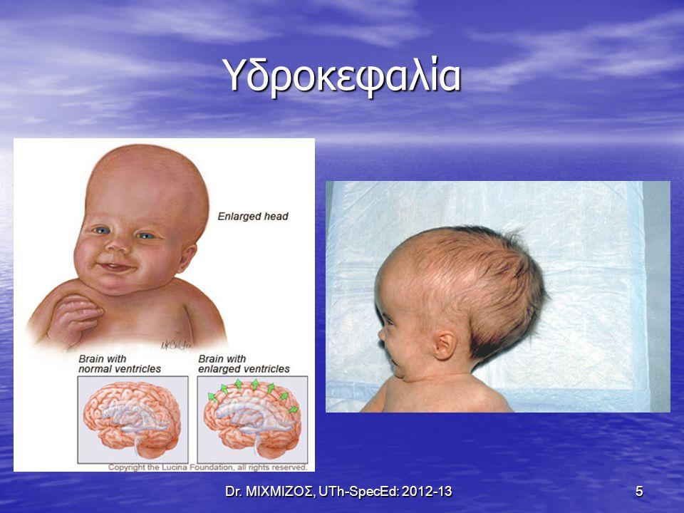 Κύτταρα του Schwann Dr. ΜΙΧΜΙΖΟΣ, UTh-SpecEd: 2012-13 16