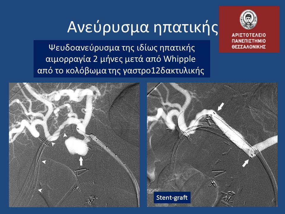Ψευδοανεύρυσμα της ιδίως ηπατικής αιμορραγία 2 μήνες μετά από Whipple από το κολόβωμα της γαστρο12δακτυλικής Stent-graft Ανεύρυσμα ηπατικής