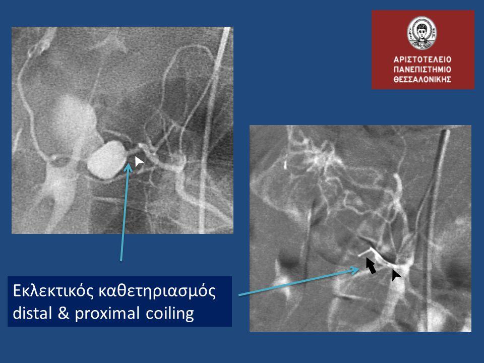 Εκλεκτικός καθετηριασμός distal & proximal coiling