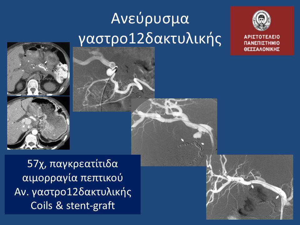 Ανεύρυσμα γαστρο12δακτυλικής 57χ, παγκρεατίτιδα αιμορραγία πεπτικού Αν. γαστρο12δακτυλικής Coils & stent-graft