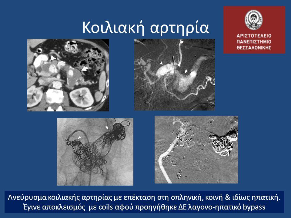 Κοιλιακή αρτηρία Ανεύρυσμα κοιλιακής αρτηρίας με επέκταση στη σπληνική, κοινή & ιδίως ηπατική. Έγινε αποκλεισμός με coils αφού προηγήθηκε ΔΕ λαγονο-ηπ