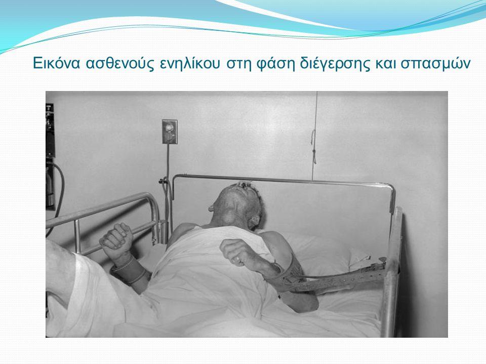 Εικόνα ασθενούς ενηλίκου στη φάση διέγερσης και σπασμών