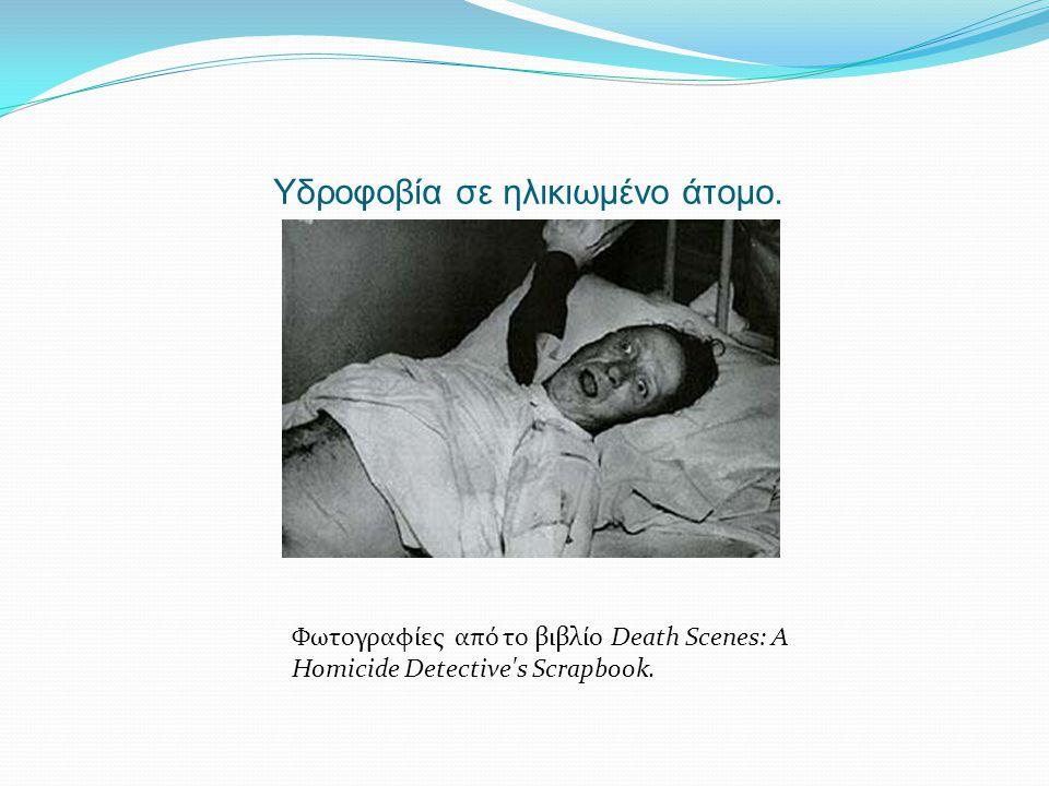 Υδροφοβία σε ηλικιωμένο άτομο. Φωτογραφίες από το βιβλίο Death Scenes: A Homicide Detective's Scrapbook.